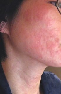 Red itchy rash on face