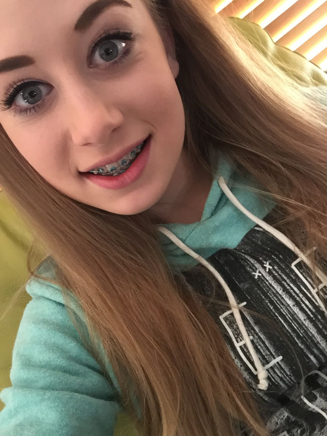 facial Cute braces girl teens with young