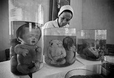 orange Vietnam birth agent defect war