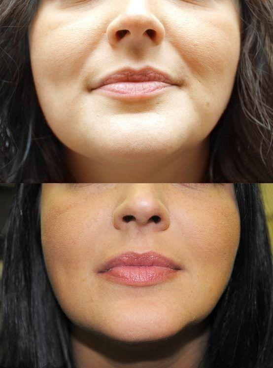 lips amateur Collagen