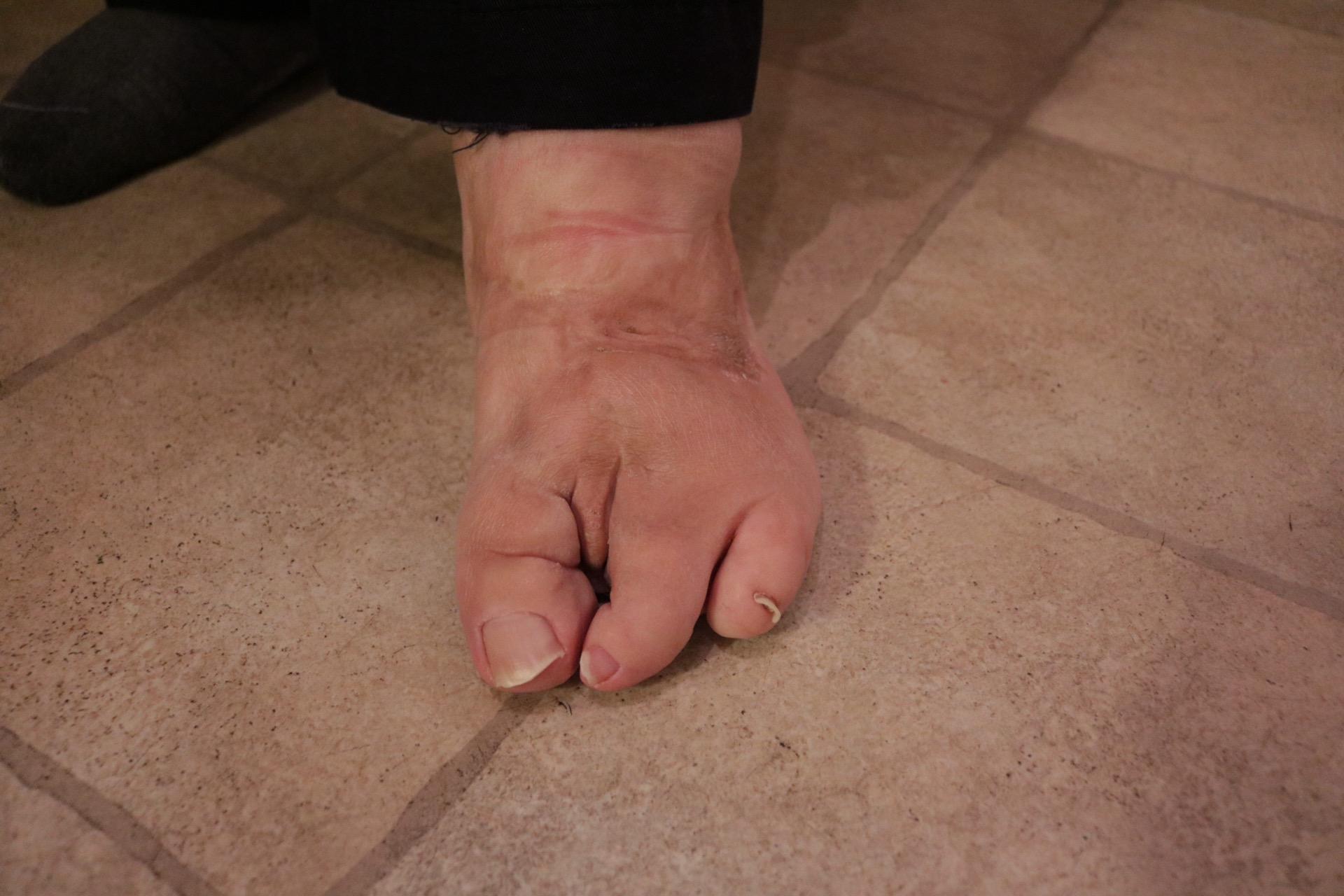 Playground feet kates